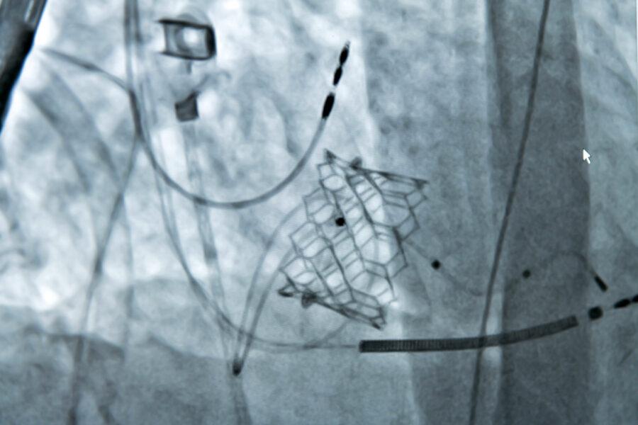 Die kathetergestützte Aortenklappen-implantation - Titelbild